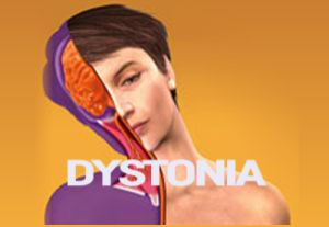 Dystonia Treatment in Bangalore